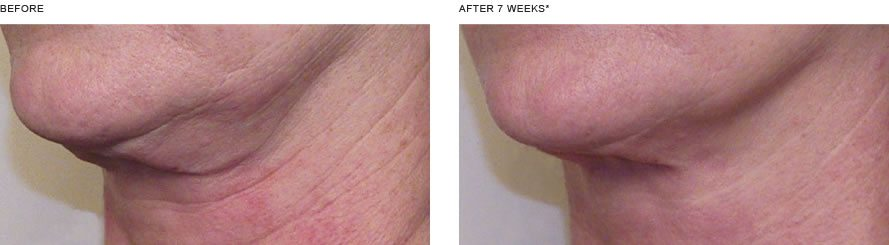 Dramatic Nectifirm Results   Wrinkle In Time   Vail, CO