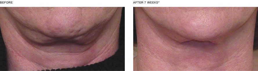 Nectifirm in Vail, CO, Neck Anti-aging | Wrinkle in Time