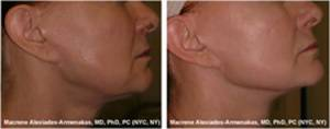 laser_resurfacing_before_after3
