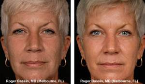 Laser Resurfacing, A Wrinkle in Time, Vail, CO